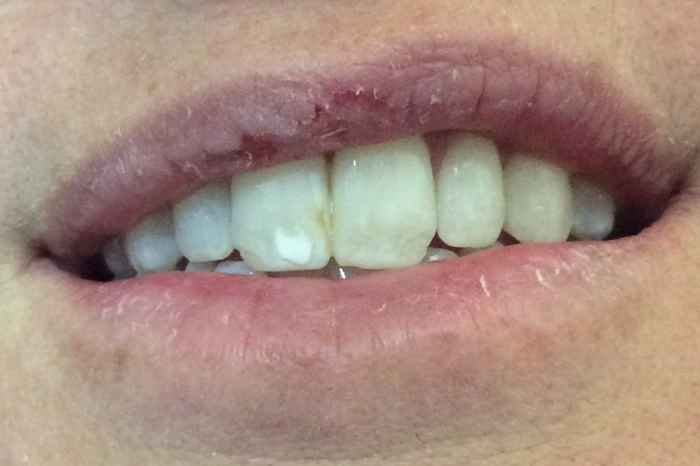before white spot removal in colleyville, tx