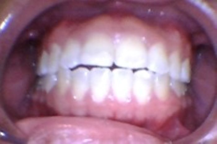 before image - orthodontics uneven frontal teeth